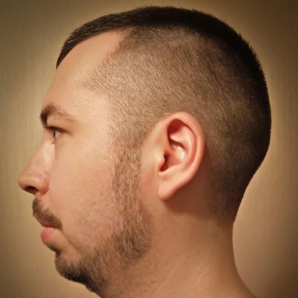 сформировать фото мужских стрижек при залысинах выполнен